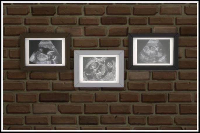 ultrassom gravidez mod the sims 4